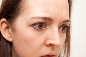 108.forehead-wrinkles_02