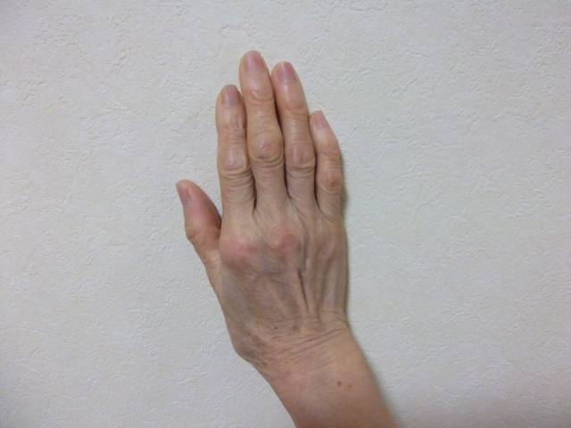 120.hand-vein_01